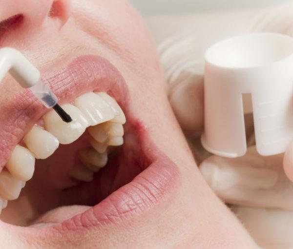Zahnpflege gehört für die meisten Menschen zum Alltag wie Essen und Schlafen. Manche betreiben mehr Aufwand als andere, aber eines gilt für alle: Sie sollten regelmäßig die professionelle Zahnreinigung (PZR) in einer Zahnarztpraxis nutzen. Denn auch der vorbildlichste Zahnpfleger kann Unterstützung bei der Bekämpfung beziehungsweise Vorbeugung von Karies und Parodontitis gebrauchen. Das heißt aber nicht, dass die eigenen Bemühungen eingeschränkt werden sollten, weil sie für eine optimale Pflege nicht ausreichen Die meisten Zahnarztpraxen bieten eine PZR an. Sie wird entweder vom Zahnarzt selbst oder speziell geschultem Praxispersonal durchgeführt. In der Regel gehören folgende Leistungen dazu, Entfernen von harten und weichen Belägen, Polieren, Fluoridieren und Beratung zur täglichen Mundhygiene